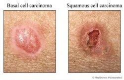 鱗狀細胞癌